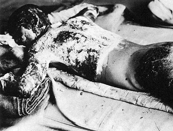 VICTIM OF ATOMIC BOMB